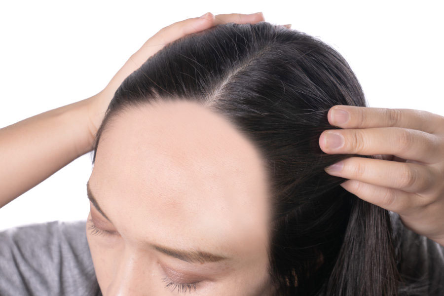 Close de cabeça de uma mulher que está puxando o cabelo pra trás mostrando que tem alopecia central fibrosante