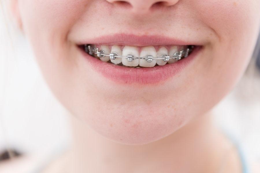 Mulher de frente sorrindo com aparelho autoligável à mostra