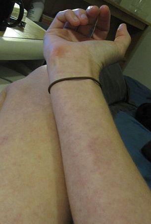closee de pele com dengue