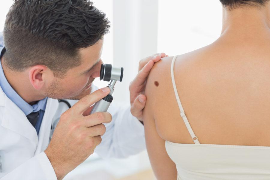 Médico examinando uma mancha nas costas de uma mulher para descobrir se é melanoma